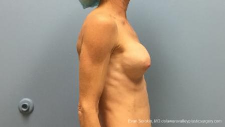 Philadelphia Breast Augmentation 13182 - Before and After Image 5