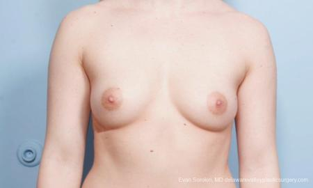 Breast Augmentation: Patient 129 - Before Image 1