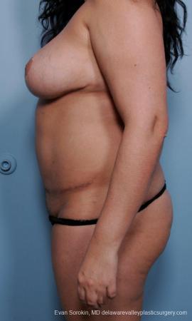 Philadelphia Mommy Makeover 9442 -  After Image 5