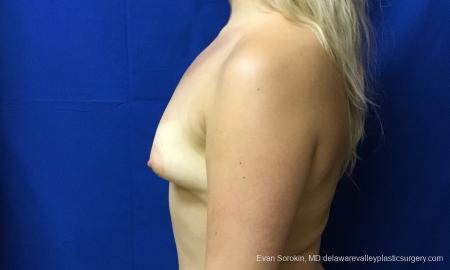 Philadelphia Breast Augmentation 12517 - Before and After Image 5