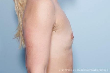 Philadelphia Breast Augmentation 8651 - Before and After Image 5