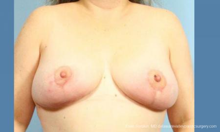 Philadelphia Breast Reduction 9430 - Before Image 1