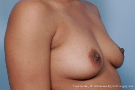 Philadelphia Breast Augmentation 9387 - Before Image 2