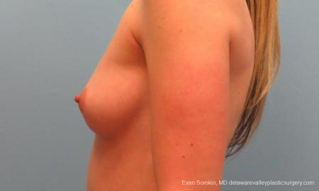 Philadelphia Breast Augmentation 9381 - Before and After Image 5