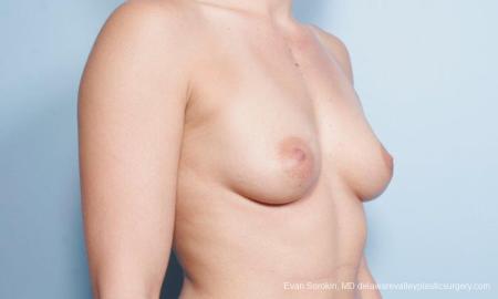 Philadelphia Breast Augmentation 9296 - Before Image 4