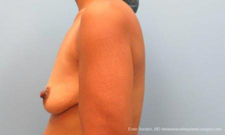 Philadelphia Breast Lift and Augmentation 9343 - Before and After Image 5