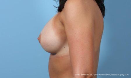 Philadelphia Breast Augmentation 8643 -  After Image 5