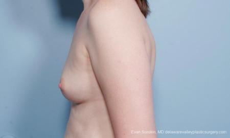 Philadelphia Breast Augmentation 9418 - Before and After Image 5
