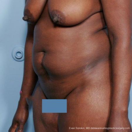 Philadelphia Abdominoplasty 9477 - Before Image 4