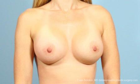 Philadelphia Breast Augmentation 8659 -  After Image 1