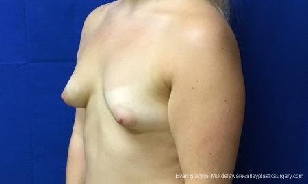 Philadelphia Breast Augmentation 12517 - Before Image 3