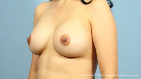 Philadelphia Breast Augmentation 9287 -  After Image 4
