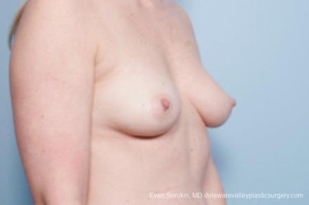 Philadelphia Breast Augmentation 8658 - Before Image 2