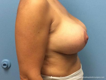 Philadelphia Breast Lift and Augmentation 13070 -  After Image 3
