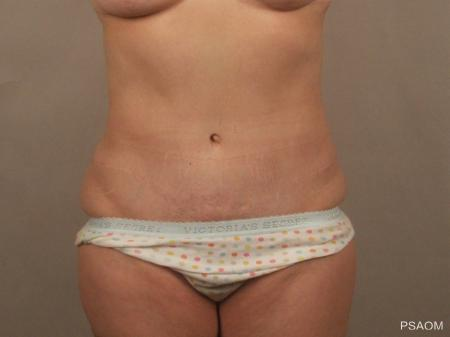 Tummy Tuck: Patient 5 - After Image 1