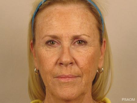 Laser Skin Resurfacing - Face: Patient 1 - Before Image