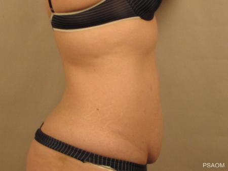 Tummy Tuck: Patient 3 - Before and After Image 2