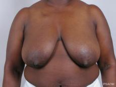 Breast Reconstruction: Patient 1 - Before Image