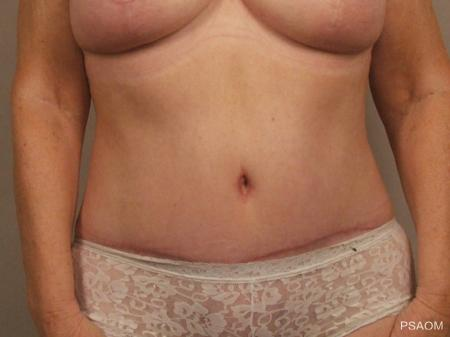 Tummy Tuck: Patient 2 - After Image 1