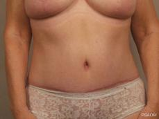 Tummy Tuck: Patient 2 - After Image