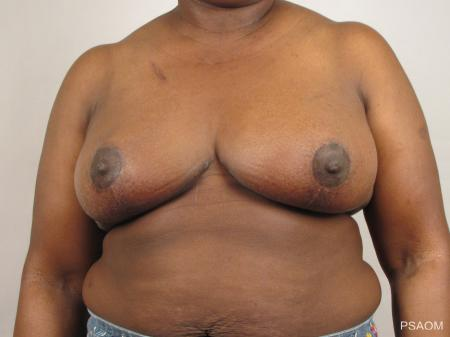 Breast Reconstruction: Patient 1 - After Image