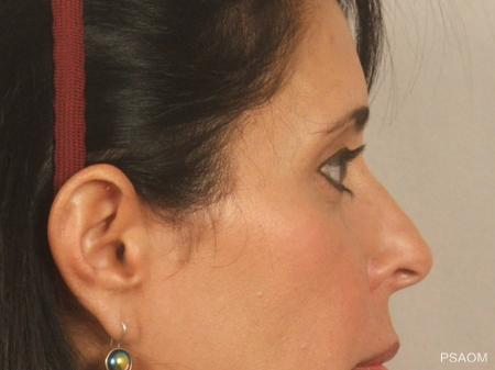 Eyelid Lift: Patient 2 - After Image 2