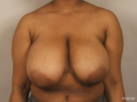 Breast Reduction: Patient 6 - Before Image