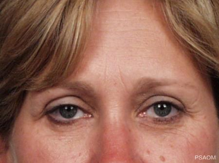 BOTOX® Cosmetic: Patient 1 - Before Image