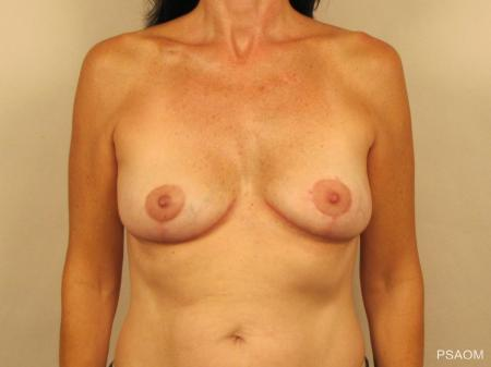 Breast Implant Removal With Lift: Patient 1 - After Image
