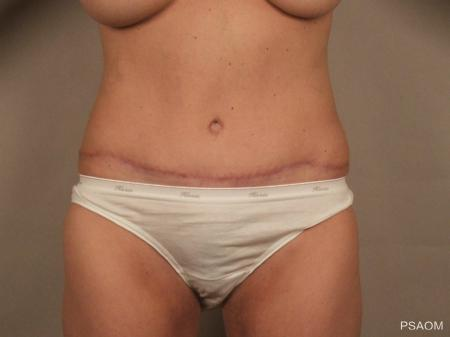 Tummy Tuck: Patient 1 - After Image 1