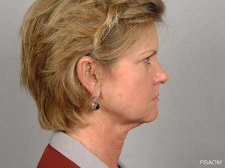 Facelift: Patient 4 - After Image