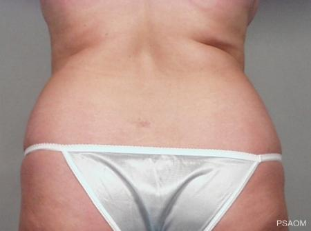 Liposuction: Patient 2 - Before Image