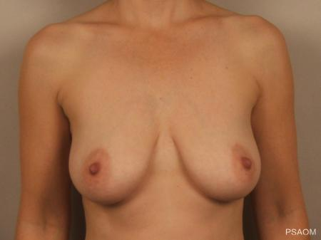 Breast Augmentation With Lift: Patient 1 - Before Image