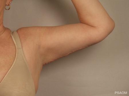 Arm Lift: Patient 1 - After 2