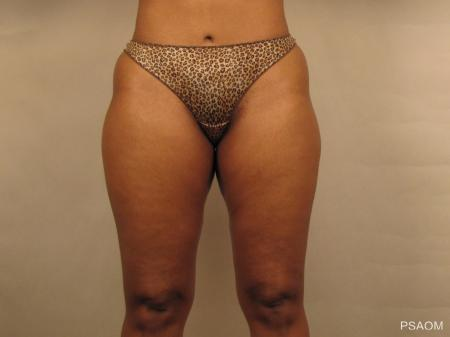 Liposuction: Patient 1 - Before Image