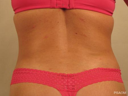Liposuction: Patient 4 - After Image