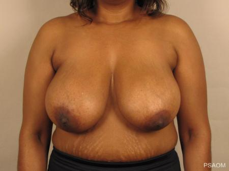 Breast Reduction: Patient 4 - Before Image