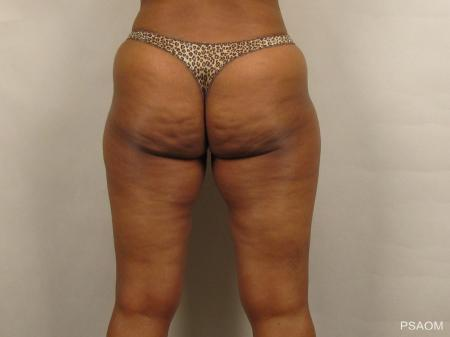 Liposuction: Patient 1 - Before and After Image 3