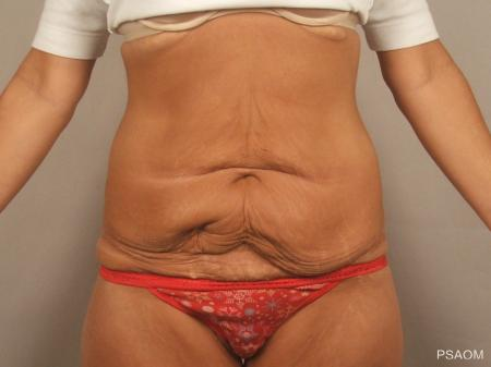 Tummy Tuck: Patient 4 - Before Image 1