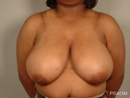 Breast Reduction: Patient 10 - Before Image