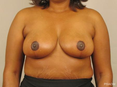 Breast Reduction: Patient 4 - After Image