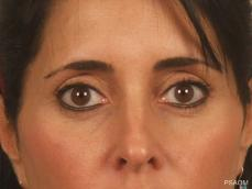 Eyelid Lift: Patient 2 - After Image