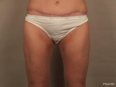 Liposuction: Patient 3 - After Image
