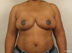 Breast Reduction: Patient 2 - After Image