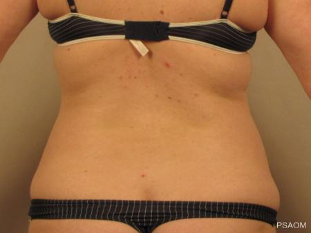 Liposuction: Patient 4 - Before Image