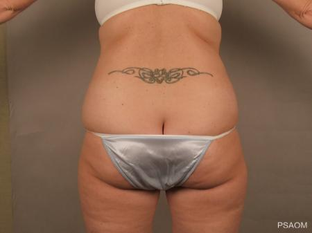 Liposuction: Patient 3 - Before and After Image 3