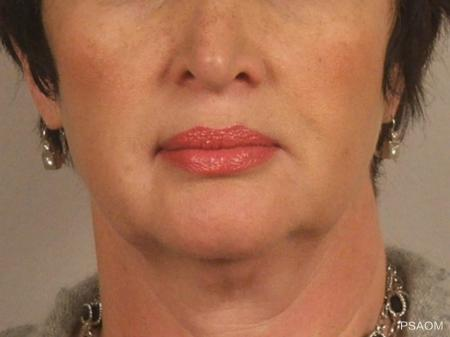 Injectables - Face: Patient 1 - After Image