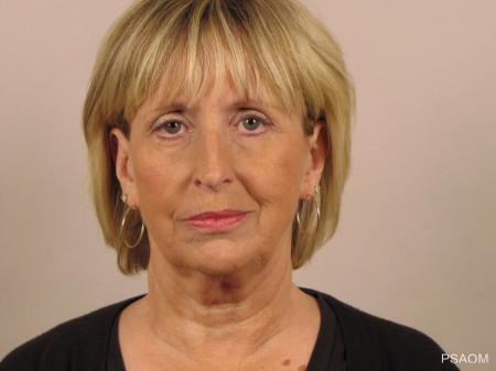 Facelift: Patient 3 - Before Image
