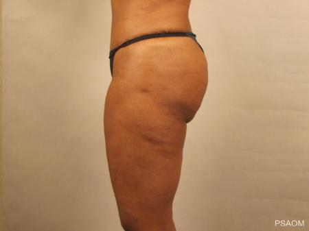Liposuction: Patient 1 - After Image 2