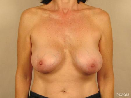 Breast Implant Removal With Lift: Patient 1 - Before Image